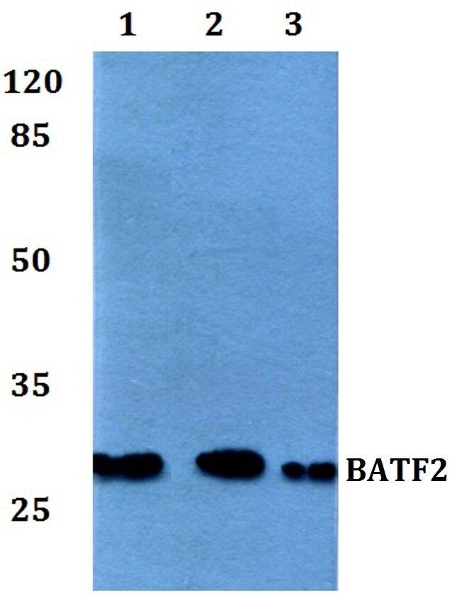 BATF2 Antibody (PA5-37138) in Western Blot