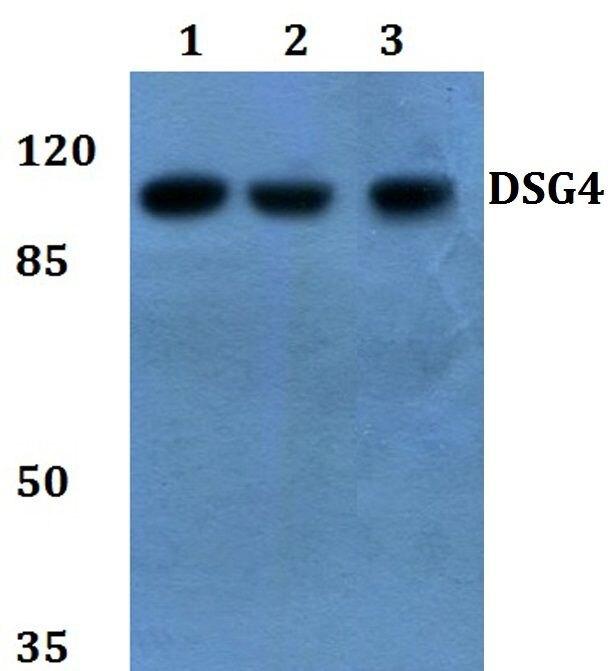Desmoglein 4 Antibody (PA5-37155) in Western Blot