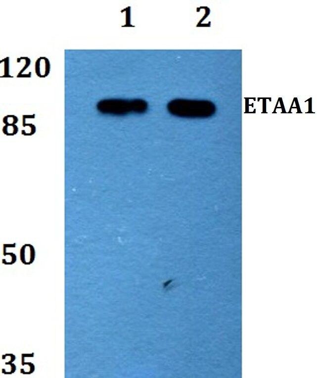 ETAA1 Antibody (PA5-37162) in Western Blot