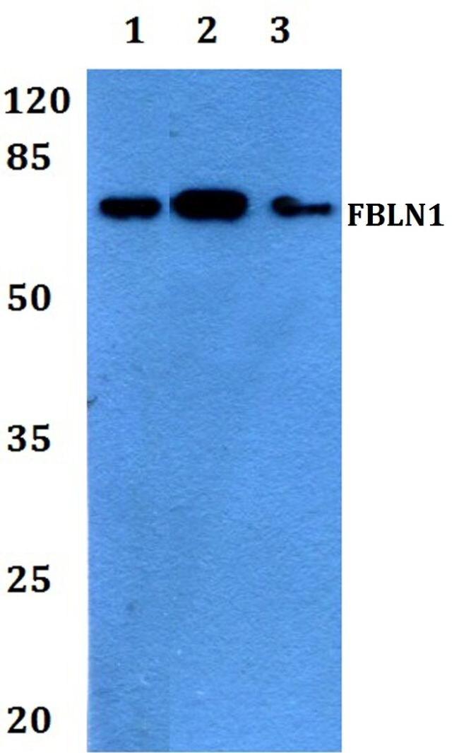 Fibulin 1 Antibody (PA5-37163)