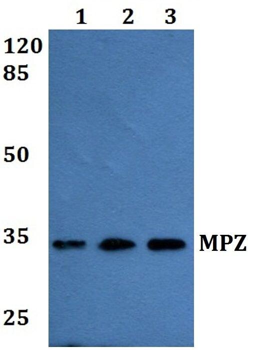 MPZ Antibody (PA5-37179) in Western Blot