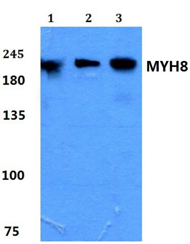 MYH8 Antibody (PA5-37180) in Western Blot