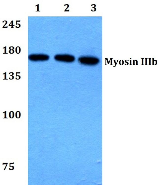 MYO3B Antibody (PA5-37181) in Western Blot