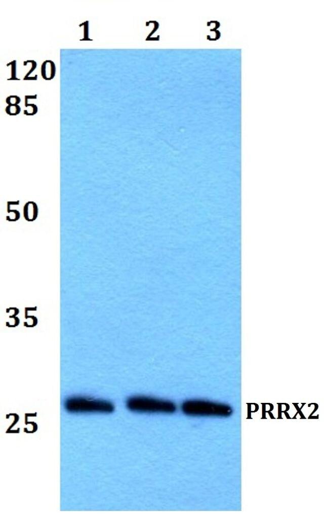 PRRX2 Antibody (PA5-37195)