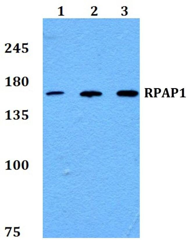 RPAP1 Antibody (PA5-37217) in Western Blot