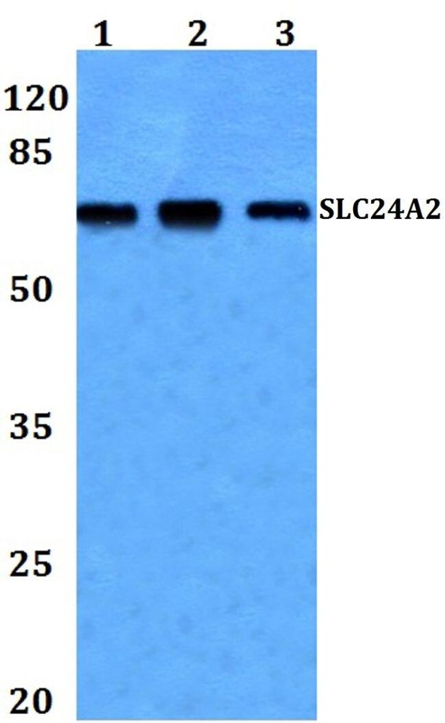 SLC24A2 Antibody (PA5-37224)
