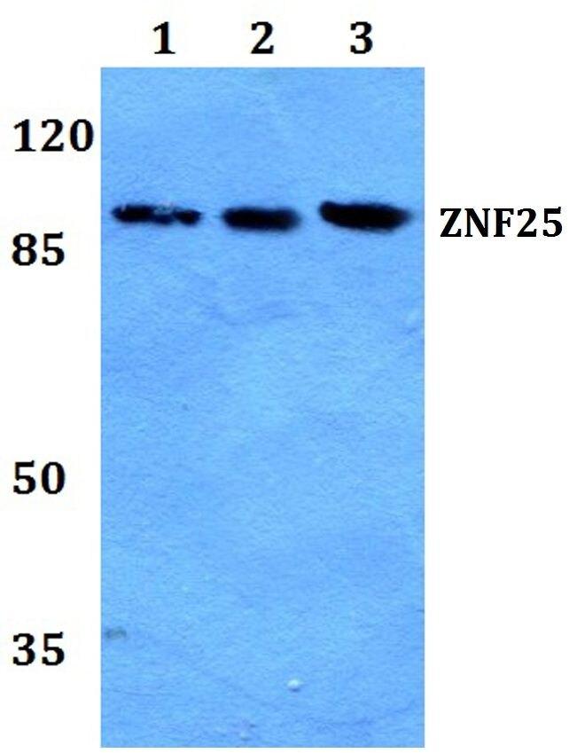 ZNF25 Antibody (PA5-37238) in Western Blot