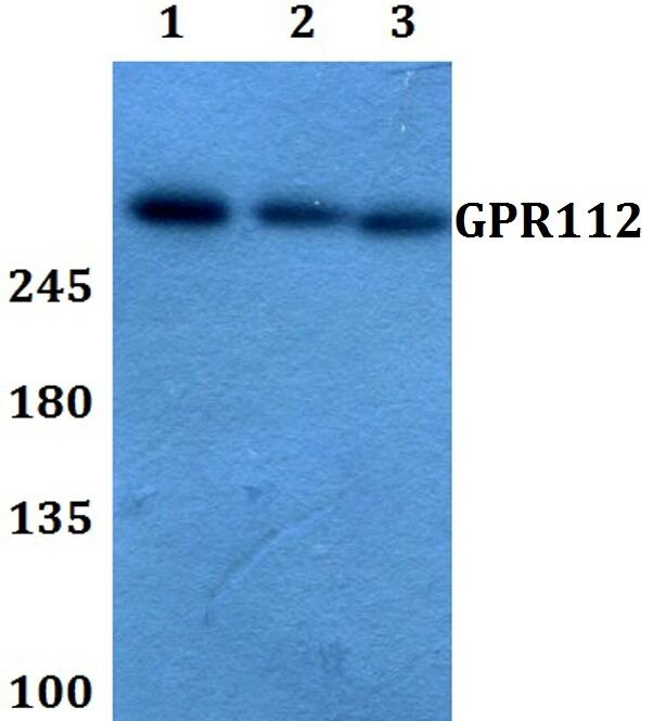 GPR112 Antibody (PA5-37269) in Western Blot