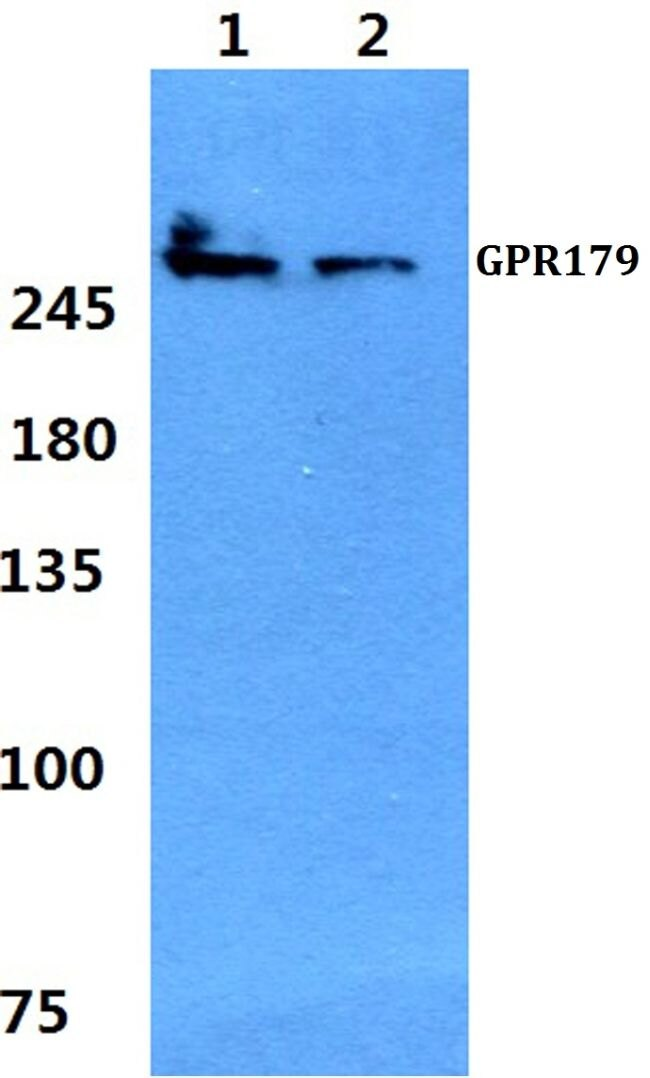 GPR179 Antibody (PA5-37271) in Western Blot