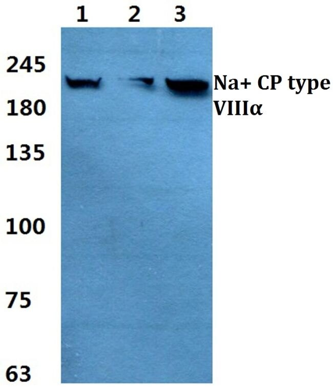 SCN8A Antibody (PA5-37276) in Western Blot
