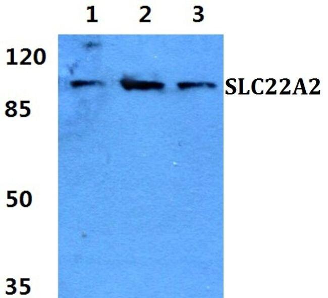 SLC22A2 Antibody (PA5-37290) in Western Blot