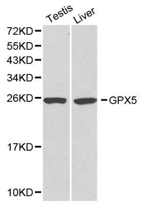 GPX5 Antibody (PA5-37309) in Western Blot