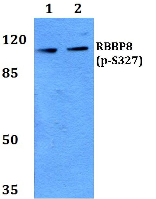 Phospho-CtIP (Ser327) Antibody (PA5-37337) in Western Blot