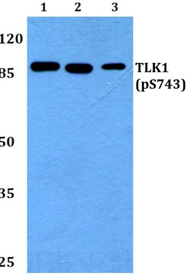 Phospho-TLK1 (Ser743) Antibody (PA5-37340)