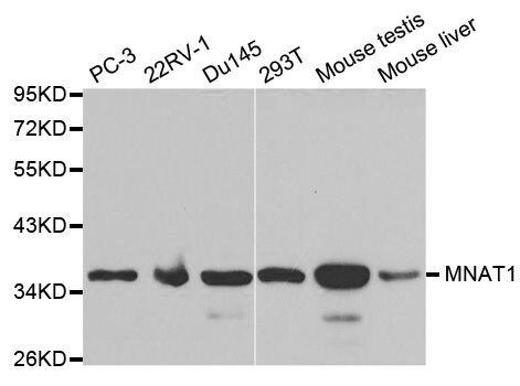 MNAT1 Antibody (PA5-37378) in Western Blot