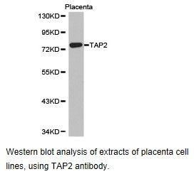 TAP2 Antibody (PA5-37414) in Western Blot