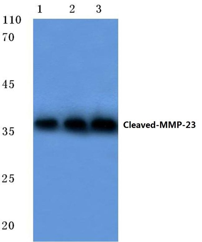 MMP23 (Cleaved Tyr79) Antibody (PA5-37434)