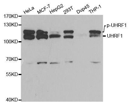 UHRF1 Antibody (PA5-37440) in Western Blot