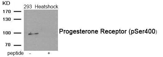 Phospho-Progesterone Receptor (Ser400) Antibody (PA5-37473) in Western Blot