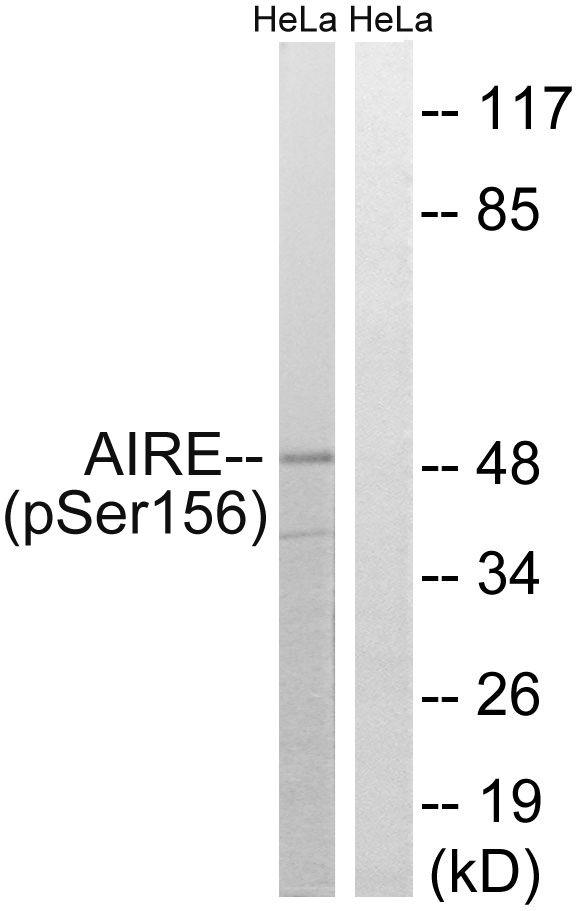 Phospho-AIRE (Ser156) Antibody (PA5-37475) in Western Blot
