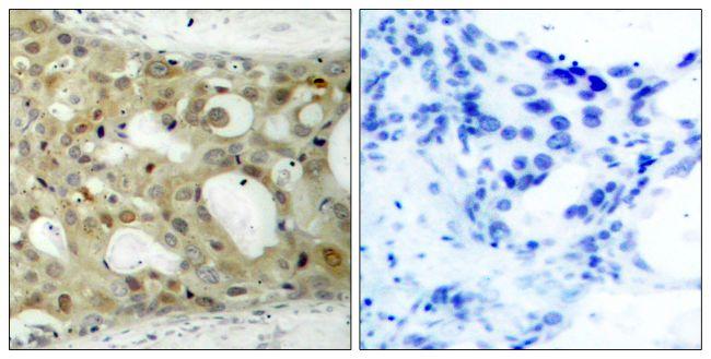 Phospho-Androgen Receptor (Ser650) Antibody (PA5-37479) in Immunohistochemistry (Paraffin)