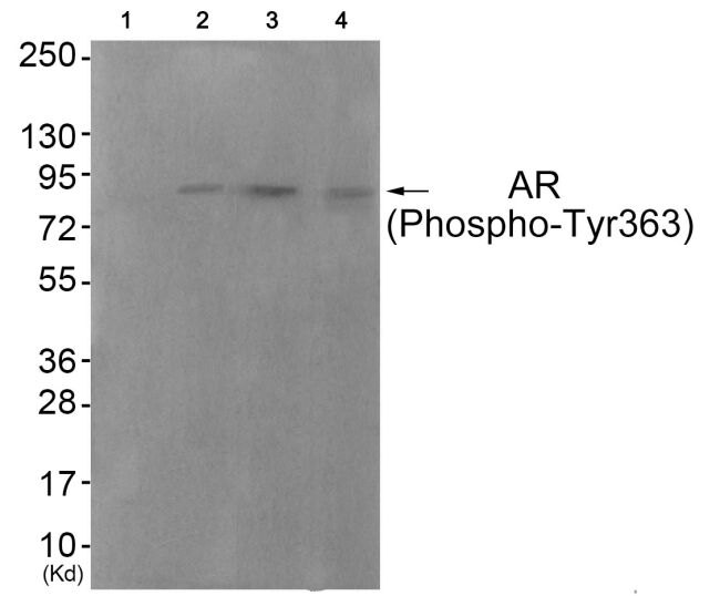 Phospho-Androgen Receptor (Tyr363) Antibody (PA5-37480) in Western Blot