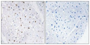 Phospho-Blooms Syndrome (Thr99) Antibody (PA5-37493) in Immunohistochemistry (Paraffin)