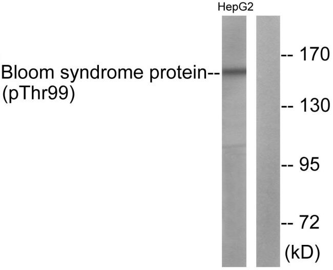 Phospho-Blooms Syndrome (Thr99) Antibody (PA5-37493) in Western Blot
