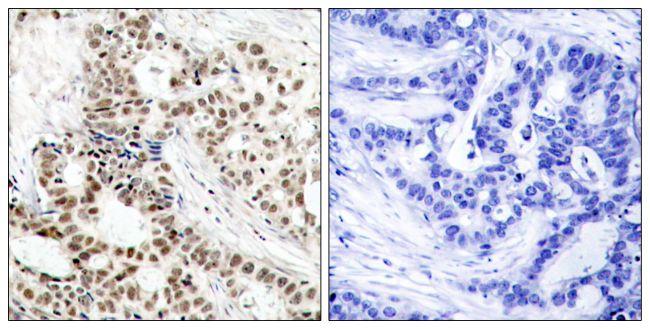 Phospho-BRCA1 (Ser1423) Antibody (PA5-37494) in Immunohistochemistry (Paraffin)