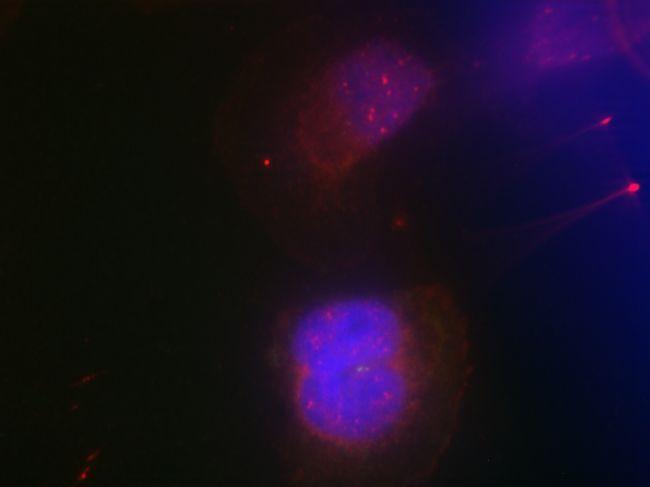 Phospho-BRCA1 (Ser988) Antibody (PA5-37496)