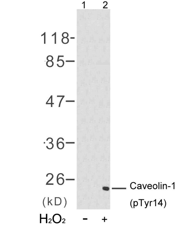 Phospho-Caveolin 1 (Tyr14) Antibody (PA5-37506) in Western Blot