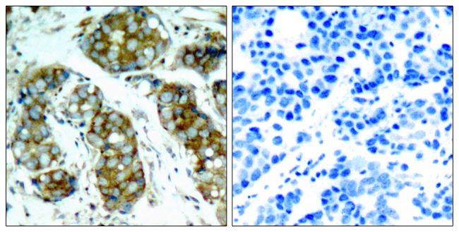 Phospho-Cdc25A (Ser76) Antibody (PA5-37514) in Immunohistochemistry (Paraffin)