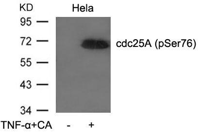 Phospho-Cdc25A (Ser76) Antibody (PA5-37514) in Western Blot