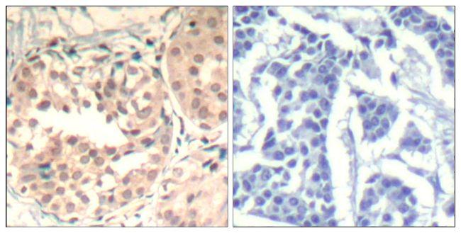 Phospho-CDK6 (Tyr13) Antibody (PA5-37517) in Immunohistochemistry (Paraffin)