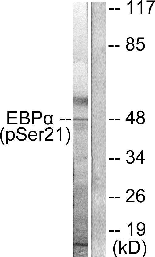 Phospho-C/EBP alpha (Ser21) Antibody (PA5-37520) in Western Blot
