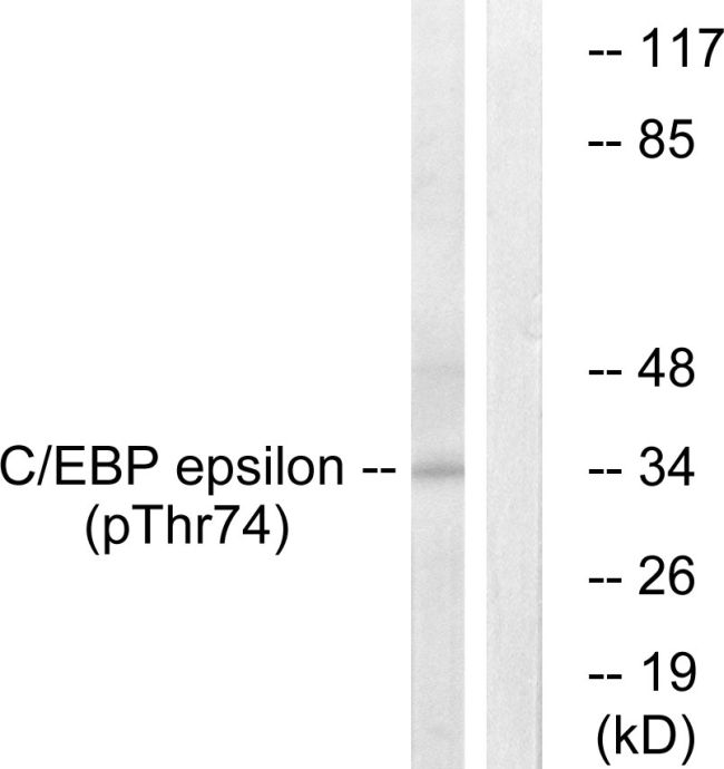 Phospho-C/EBP epsilon (Thr74) Antibody (PA5-37522)