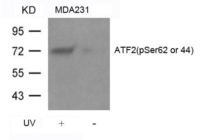 Phospho-ATF2 (Ser44, Ser62) Antibody (PA5-37531) in Western Blot