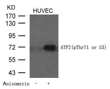 Phospho-ATF2 (Thr53, Thr71) Antibody (PA5-37533) in Western Blot