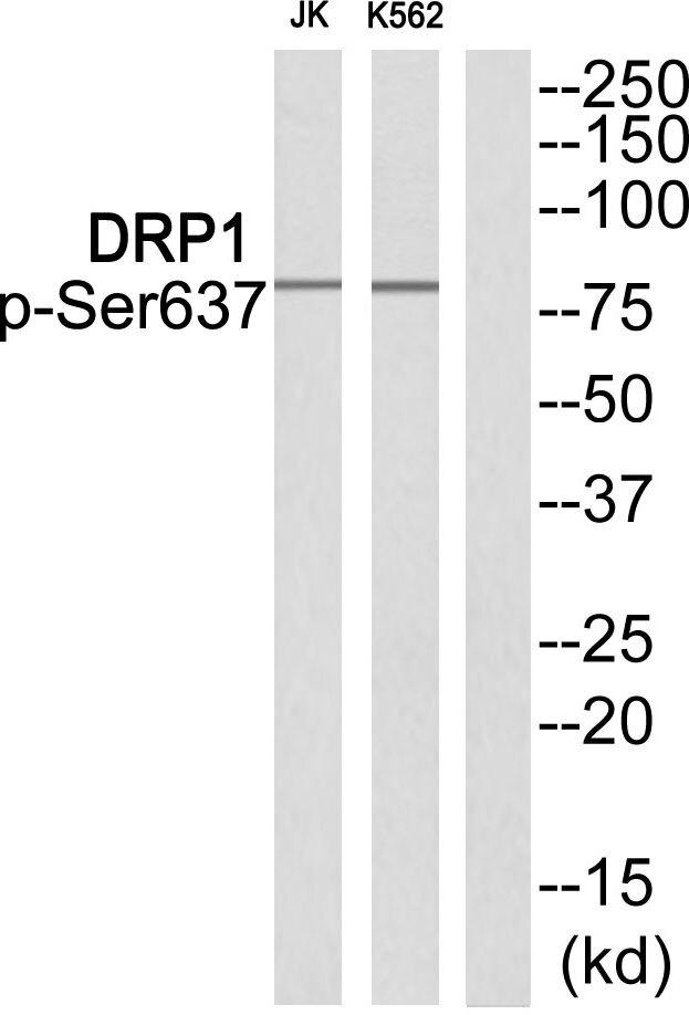 Phospho-DRP1 (Ser637) Antibody (PA5-37534) in Western Blot