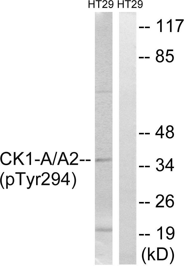 Phospho-CK1 alpha (Tyr294) Antibody (PA5-37539) in Western Blot