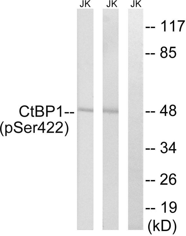 Phospho-CtBP1 (Ser422) Antibody (PA5-37541) in Western Blot