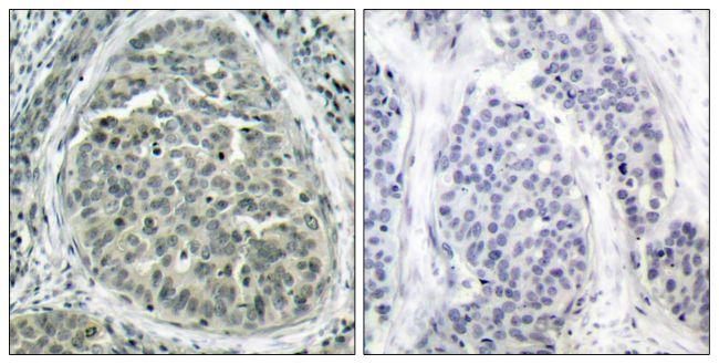 Phospho-beta Catenin (Ser37) Antibody (PA5-37544)