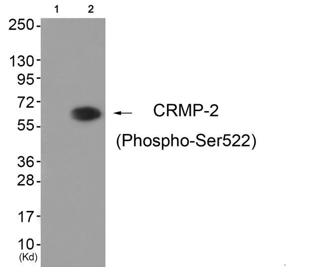 Phospho-CRMP2 (Ser522) Antibody (PA5-37550)