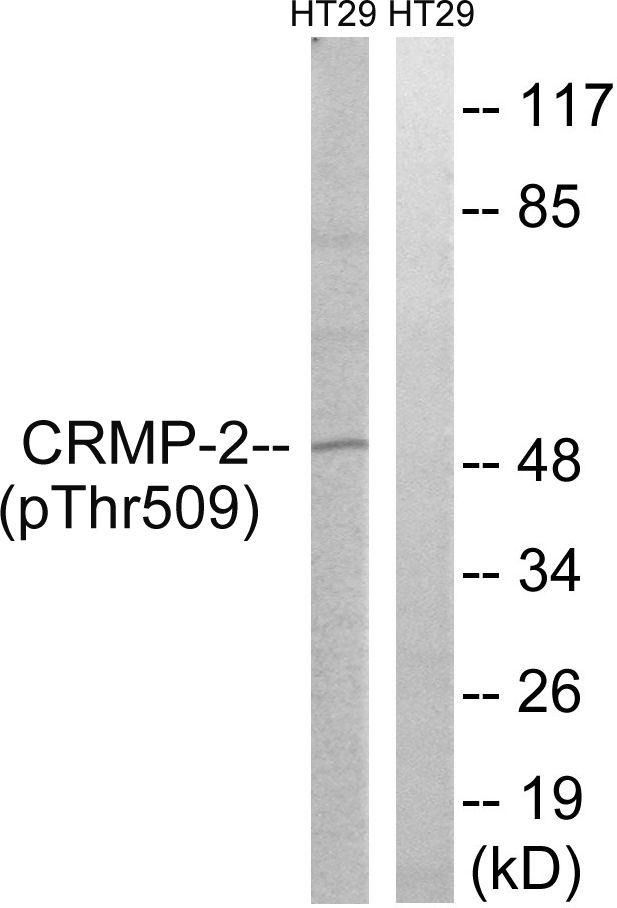 Phospho-CRMP2 (Thr509) Antibody (PA5-37551) in Western Blot