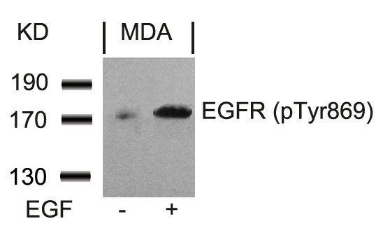 Phospho-EGFR (Tyr869) Antibody (PA5-37555)