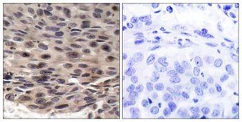 Phospho-4E-BP1 (Thr36) Antibody (PA5-37556) in Immunohistochemistry (Paraffin)