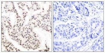 Phospho-ELK1 (Thr417) Antibody (PA5-37560) in Immunohistochemistry (Paraffin)