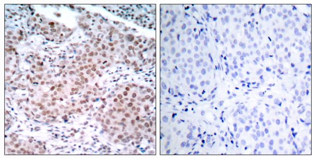 Phospho-Estrogen Receptor alpha (Ser104) Antibody (PA5-37568) in Immunohistochemistry (Paraffin)