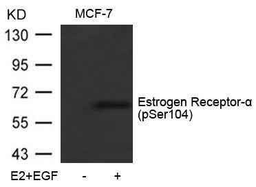 Phospho-Estrogen Receptor alpha (Ser104) Antibody (PA5-37568) in Western Blot