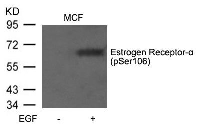 Phospho-Estrogen Receptor alpha (Ser106) Antibody (PA5-37569) in Western Blot